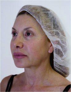 Non Surgical Facelift