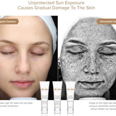 image comparing healthy skin to sun damaged skin